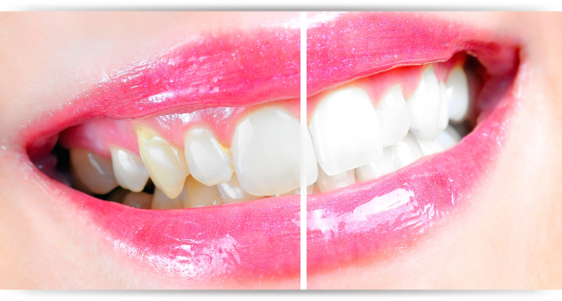 Teeth Whitening At Oakville Dental Care Cosmetic Services