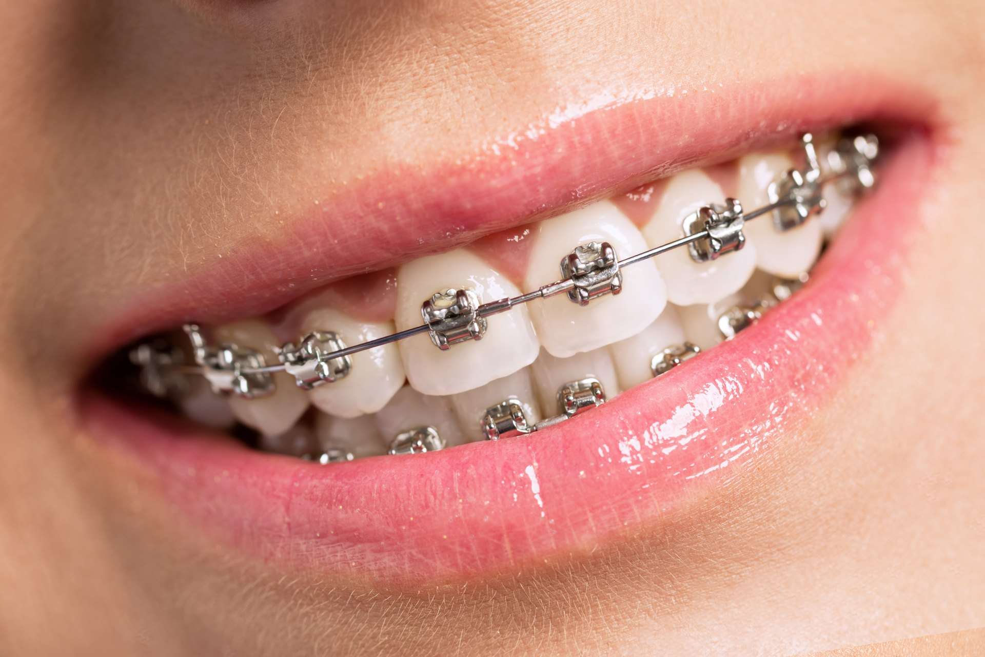 Invisalign At Oakville Dental Care Cosmetic Services